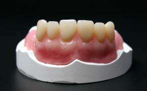 CREATIV WAX - Gingiva ruby